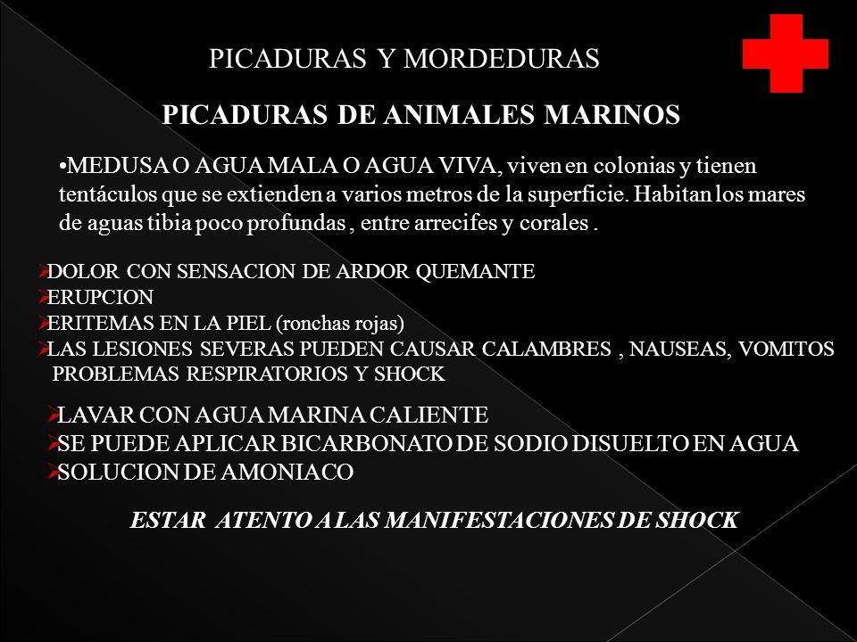 PICADURAS Y MORDEDURAS PICADURAS DE ANIMALES MARINOS MEDUSA O AGUA MALA O AGUA VIVA, viven en colonias y tienen tentáculos que se extienden a varios metros de la superficie.