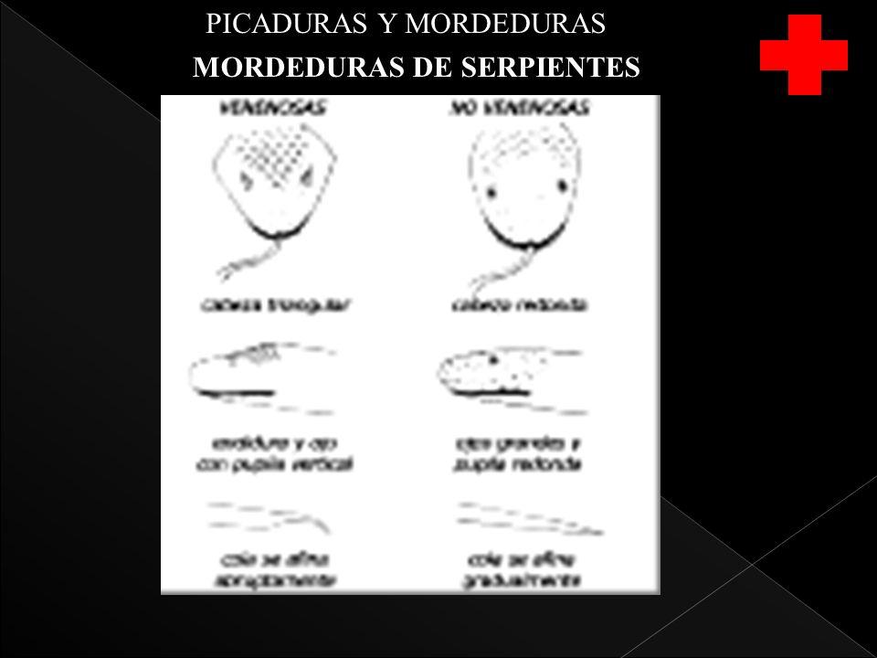 PICADURAS Y MORDEDURAS MORDEDURAS DE SERPIENTES