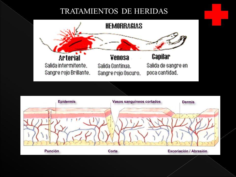 PICADURAS Y MORDEDURAS PICADURAS ALACRAN Y ESCORPION LA MAYORIA SON PRODUCIDAS ACCIDENTALMENTE INFLAMACION LOCAL Y DOLOR INTENSO NECROSIS DEL AREA AFECTADA decoloración de la piel en el lugar de la herida ADORMECIMIENTO DE LA LENGUA CALAMBRES DISTENSION GASTRICA, AUMENTO DE LA SALIVACION CONVULSIONES SHOCK, PARO RESPIRATORIO, PCR