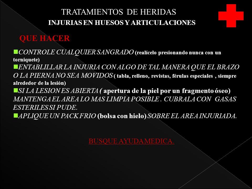 TRATAMIENTOS DE HERIDAS INJURIAS EN HUESOS Y ARTICULACIONES nCONTROLE CUALQUIER SANGRADO (realícelo presionando nunca con un torniquete) nENTABLILLAR