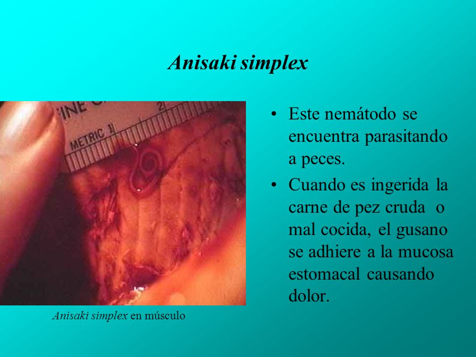 Anisaki simplex Este nemátodo se encuentra parasitando a peces.