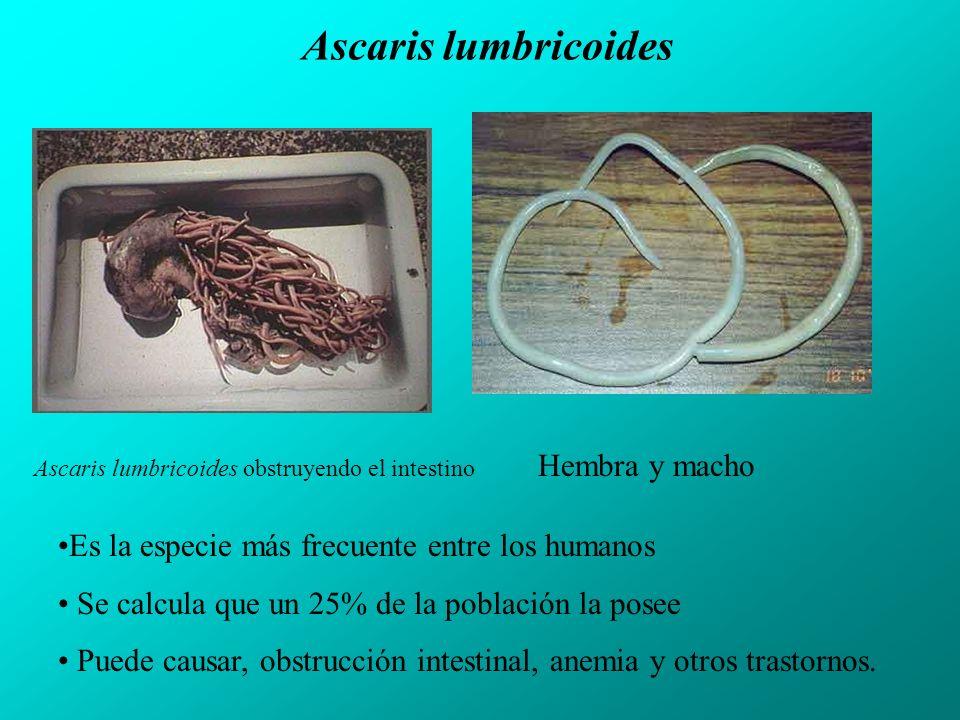 Ascaris lumbricoides Ascaris lumbricoides obstruyendo el intestino Es la especie más frecuente entre los humanos Se calcula que un 25% de la población la posee Puede causar, obstrucción intestinal, anemia y otros trastornos.