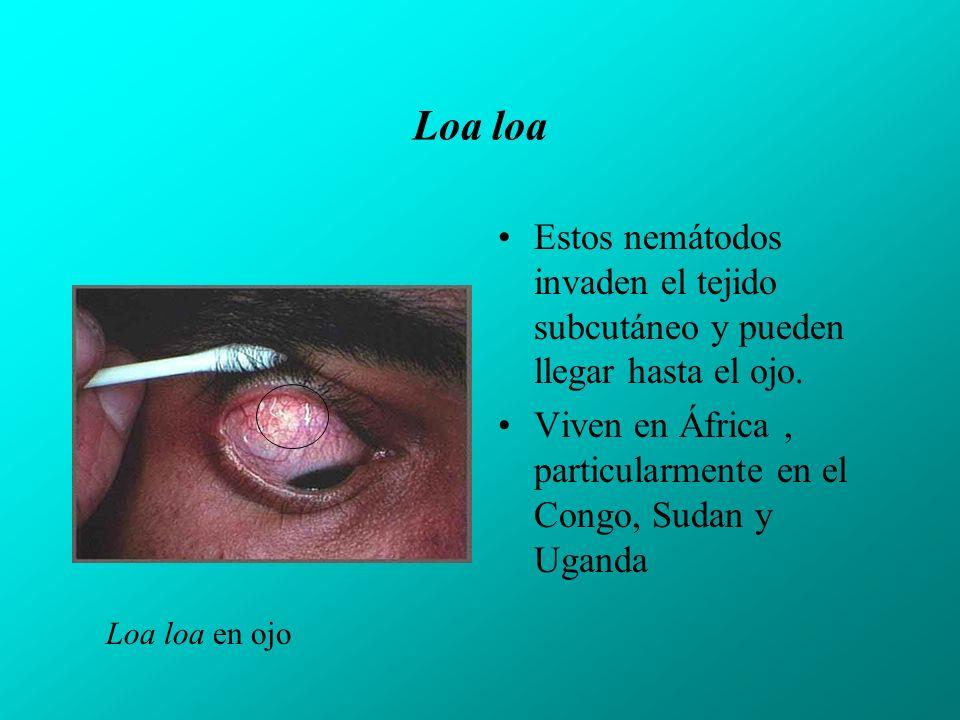 Loa loa Estos nemátodos invaden el tejido subcutáneo y pueden llegar hasta el ojo.