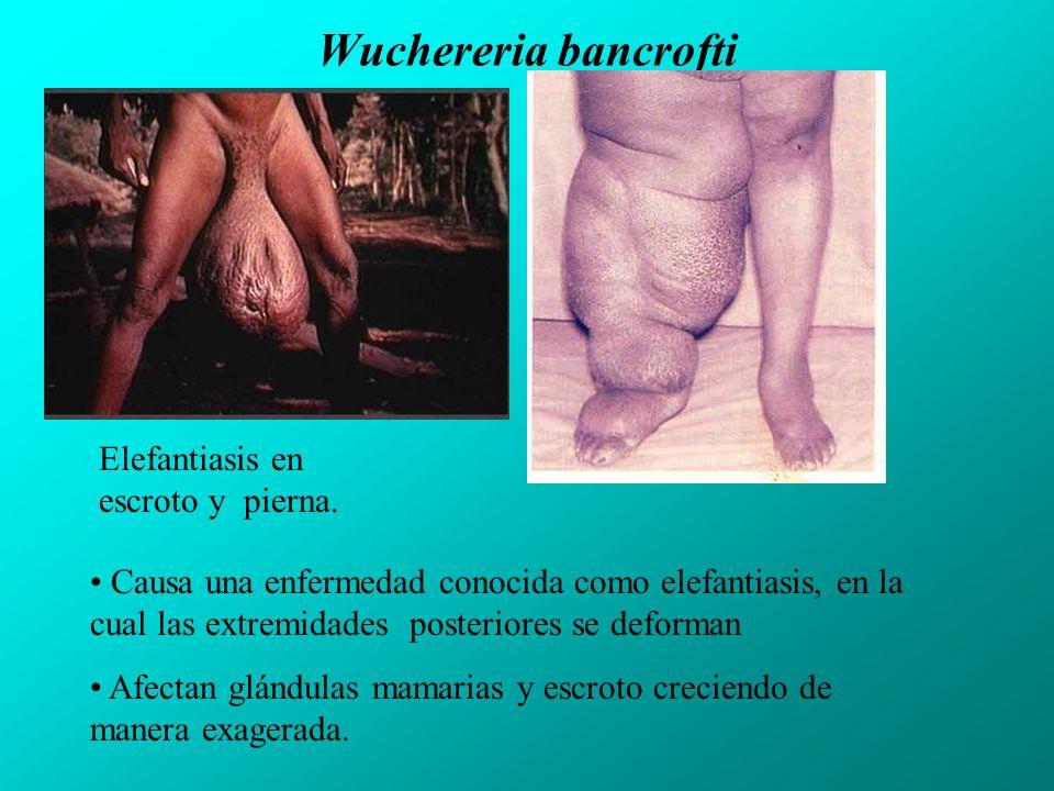 Wuchereria bancrofti Elefantiasis en escroto y pierna.
