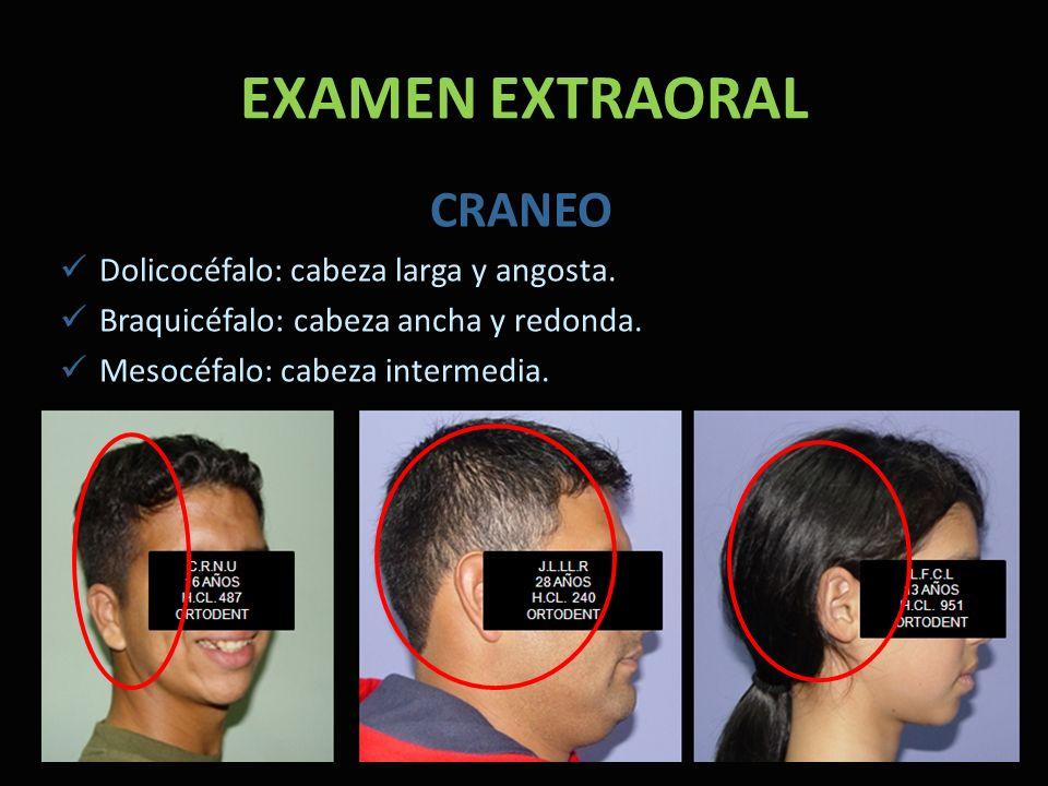 EXAMEN EXTRAORAL CRANEO Dolicocéfalo: cabeza larga y angosta.