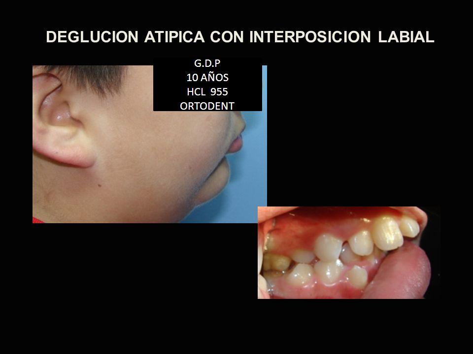 DEGLUCION ATIPICA CON INTERPOSICION LABIAL