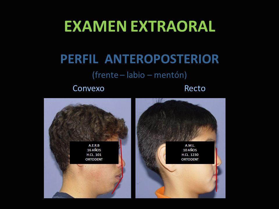 EXAMEN EXTRAORAL PERFIL ANTEROPOSTERIOR (frente – labio – mentón) Convexo Recto