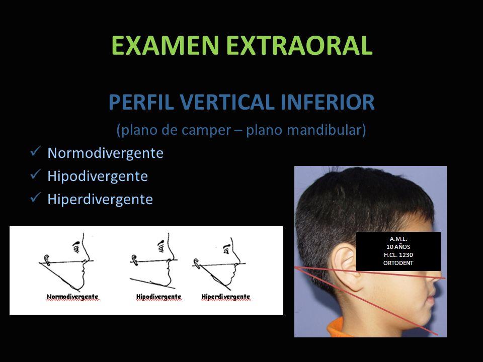 EXAMEN EXTRAORAL PERFIL VERTICAL INFERIOR (plano de camper – plano mandibular) Normodivergente Hipodivergente Hiperdivergente
