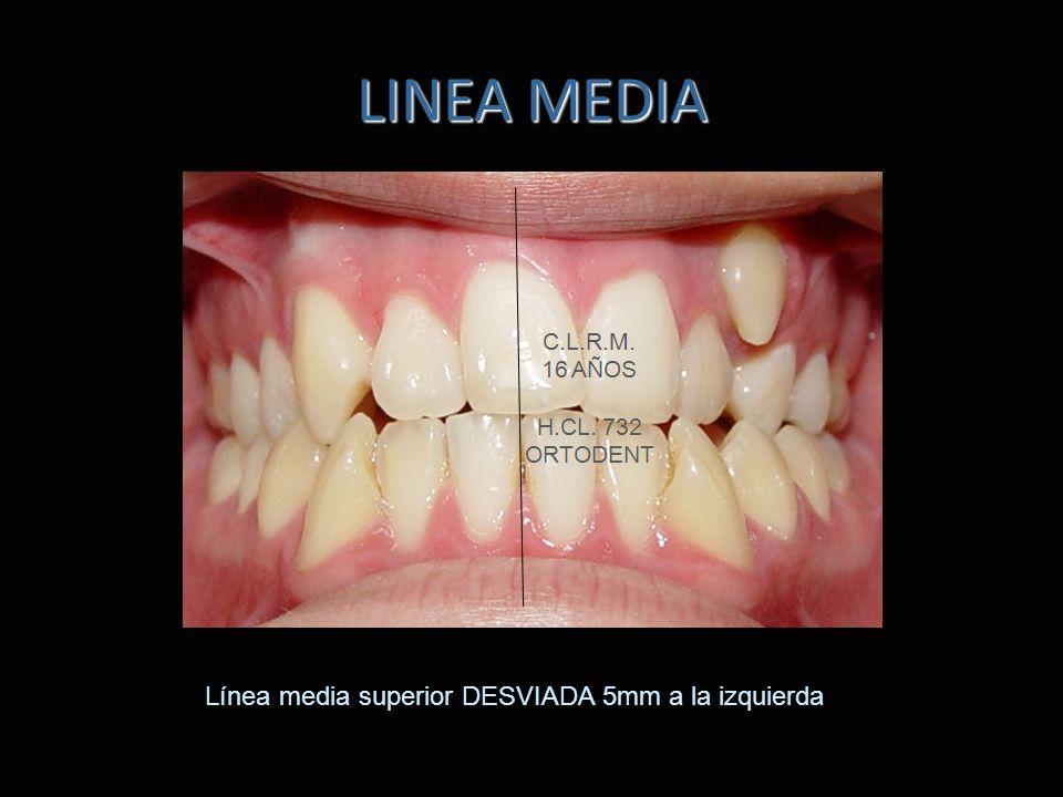 LINEA MEDIA Línea media superior DESVIADA 5mm a la izquierda