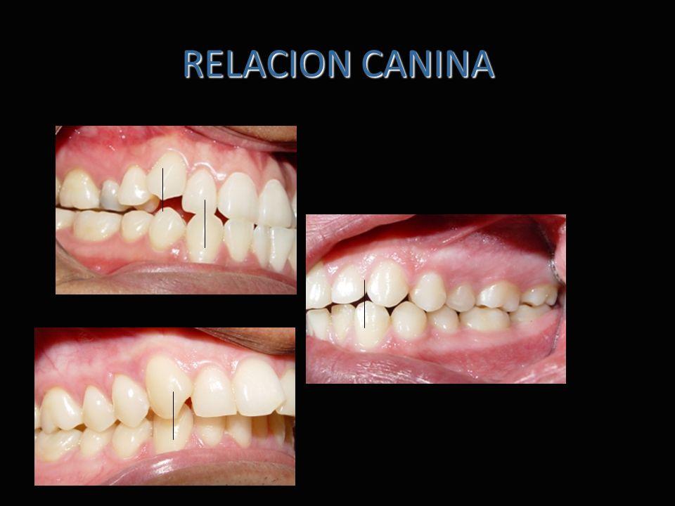 RELACION CANINA