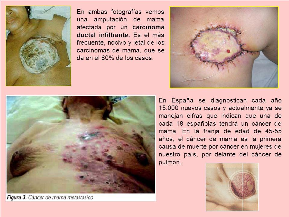 En ambas fotografías vemos una amputación de mama afectada por un carcinoma ductal infiltrante. Es el más frecuente, nocivo y letal de los carcinomas