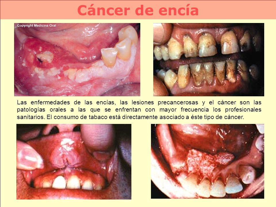 Cáncer de encía Las enfermedades de las encías, las lesiones precancerosas y el cáncer son las patologías orales a las que se enfrentan con mayor frec