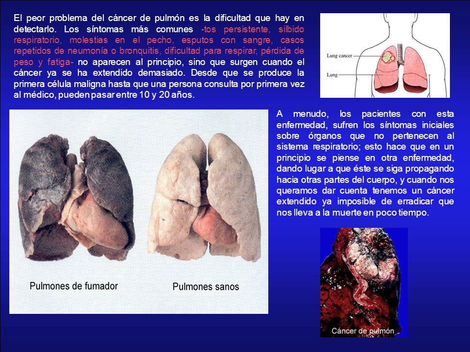 El peor problema del cáncer de pulmón es la dificultad que hay en detectarlo. Los síntomas más comunes -tos persistente, silbido respiratorio, molesti