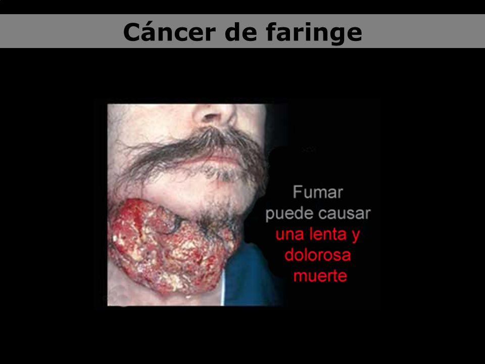 El riesgo de aparición de dicho cáncer va en progresión con la intensidad del consumo de tabaco.