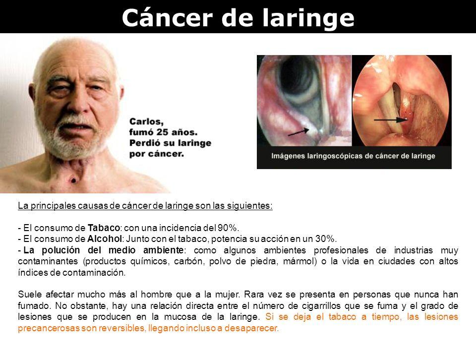 Cáncer de laringe La principales causas de cáncer de laringe son las siguientes: - El consumo de Tabaco: con una incidencia del 90%. - El consumo de A