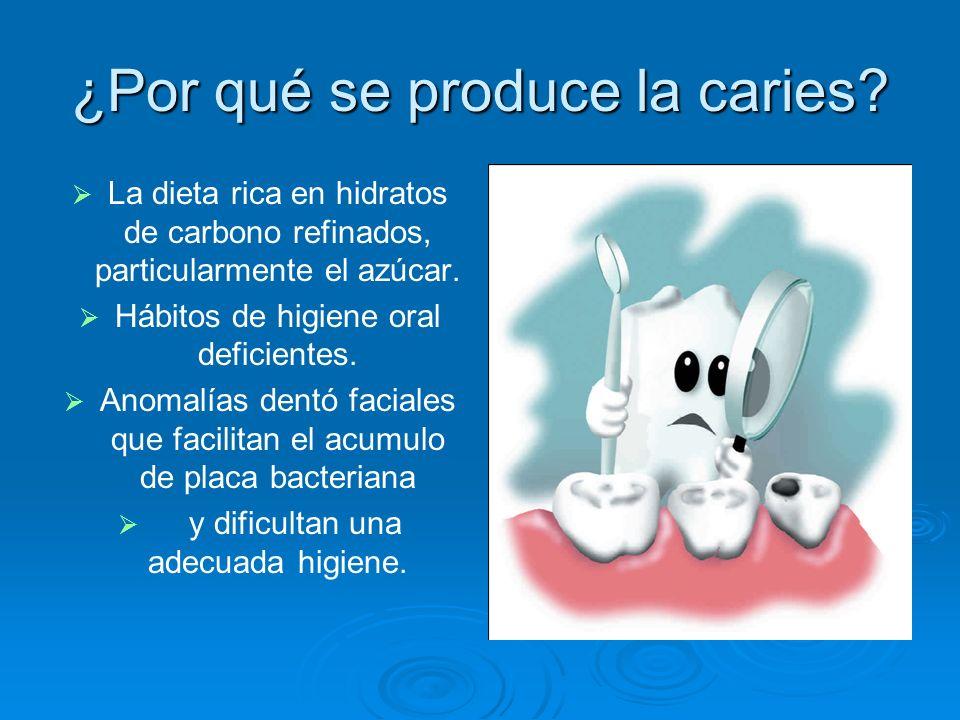¿Por qué se produce la caries? La dieta rica en hidratos de carbono refinados, particularmente el azúcar. Hábitos de higiene oral deficientes. Anomalí