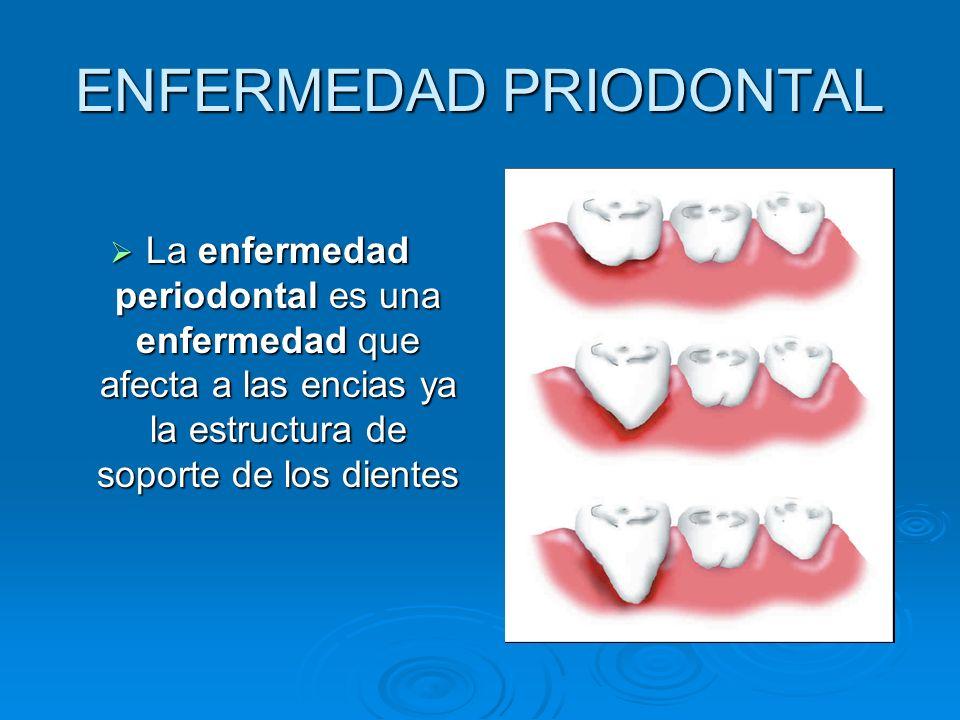 ENFERMEDAD PRIODONTAL La enfermedad periodontal es una enfermedad que afecta a las encias ya la estructura de soporte de los dientes La enfermedad per