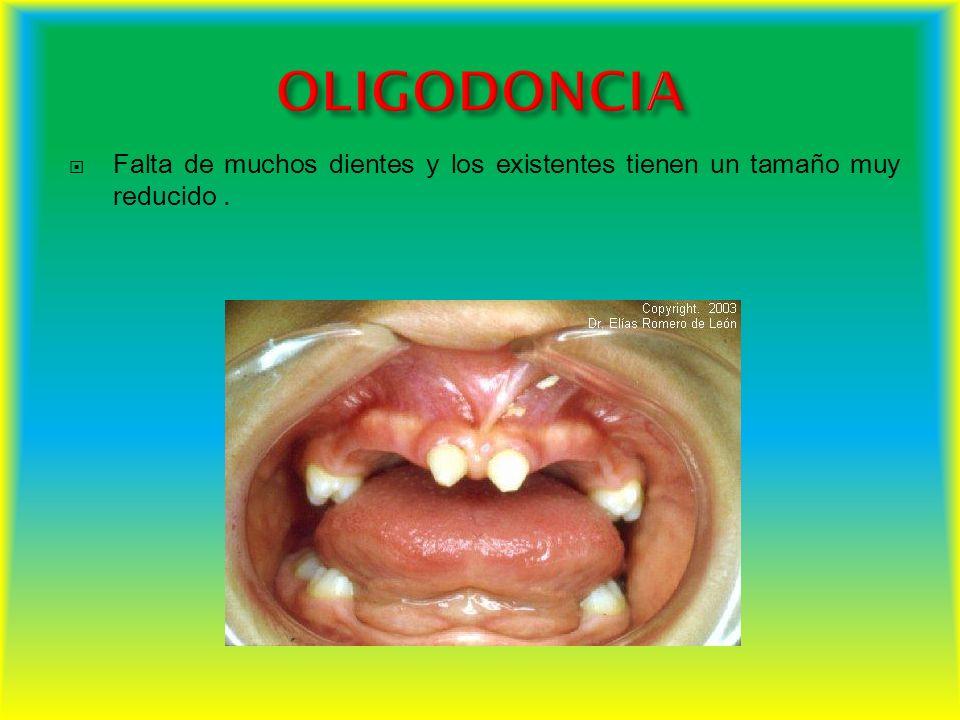 Falta de muchos dientes y los existentes tienen un tamaño muy reducido.