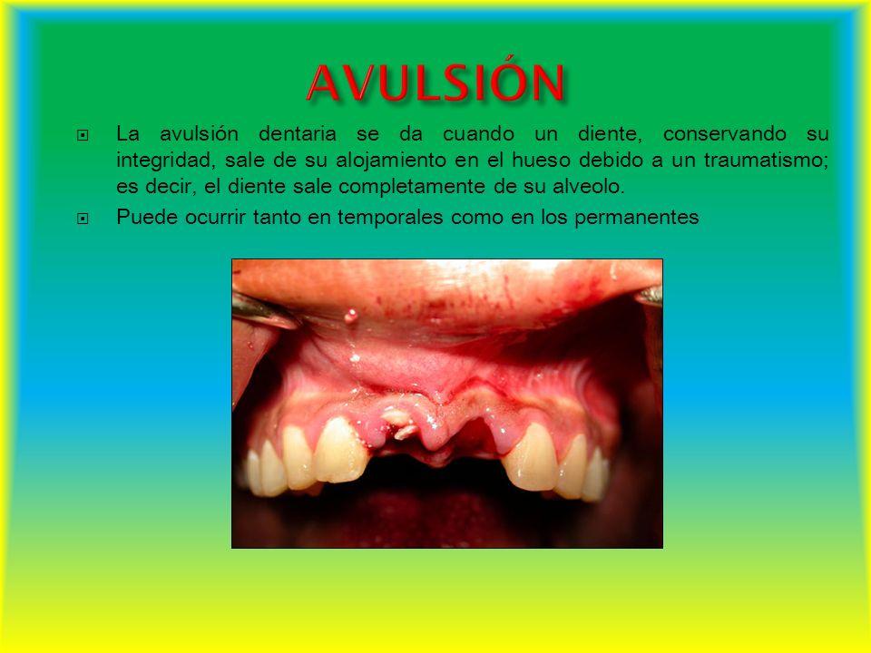 La avulsión dentaria se da cuando un diente, conservando su integridad, sale de su alojamiento en el hueso debido a un traumatismo; es decir, el dient