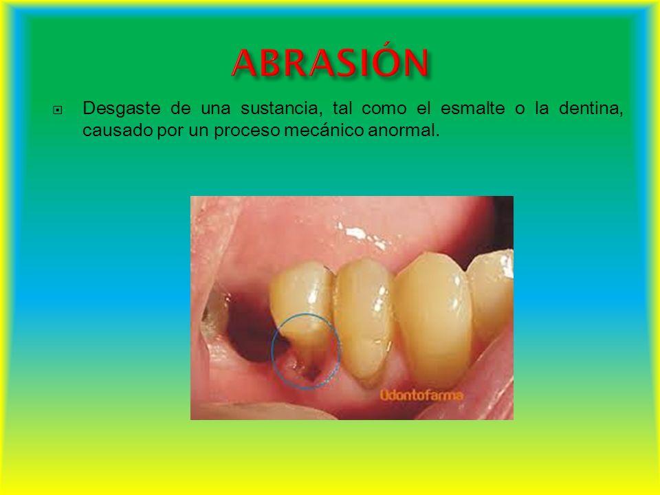 Desgaste de una sustancia, tal como el esmalte o la dentina, causado por un proceso mecánico anormal.