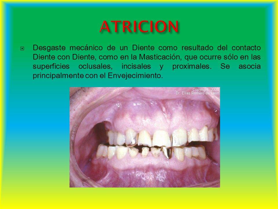 Es una enfermedad destructiva de las estructuras del diente y es también una de las enfermedades más frecuentes de la especie humana.
