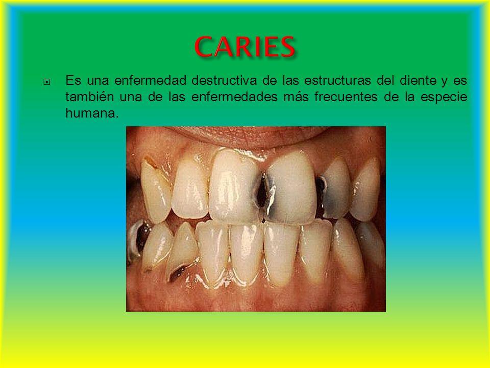 Tamaño anormalmente grande de cualquier diente.