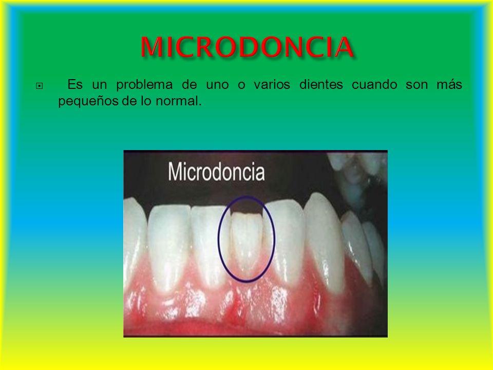 Es un problema de uno o varios dientes cuando son más pequeños de lo normal.