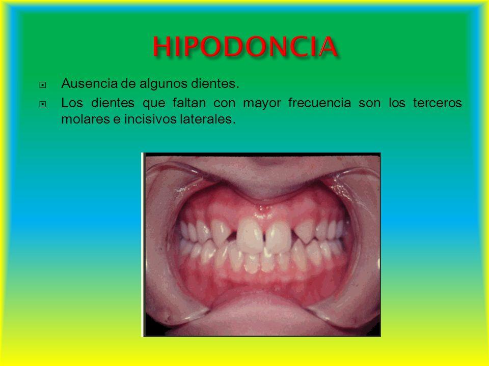 Ausencia de algunos dientes. Los dientes que faltan con mayor frecuencia son los terceros molares e incisivos laterales.