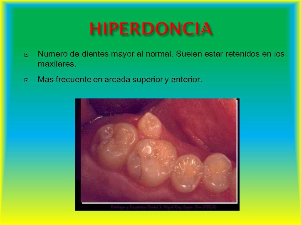 Numero de dientes mayor al normal. Suelen estar retenidos en los maxilares. Mas frecuente en arcada superior y anterior.