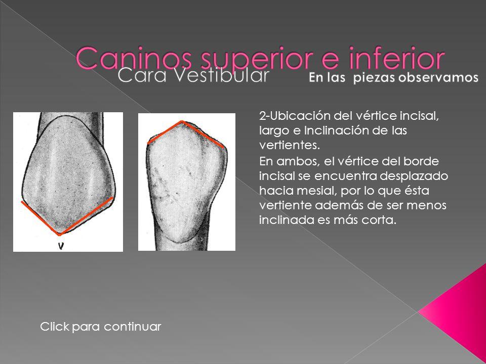 2-Ubicación del vértice incisal, largo e Inclinación de las vertientes. Click para continuar En ambos, el vértice del borde incisal se encuentra despl
