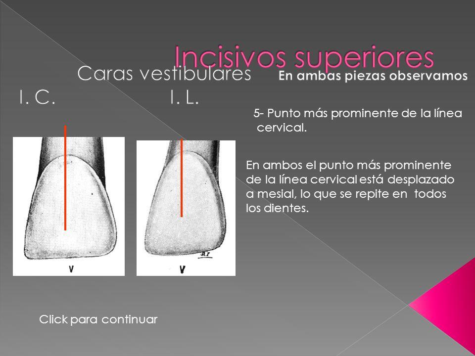 En ambos el punto más prominente de la línea cervical está desplazado a mesial, lo que se repite en todos los dientes. 5- Punto más prominente de la l