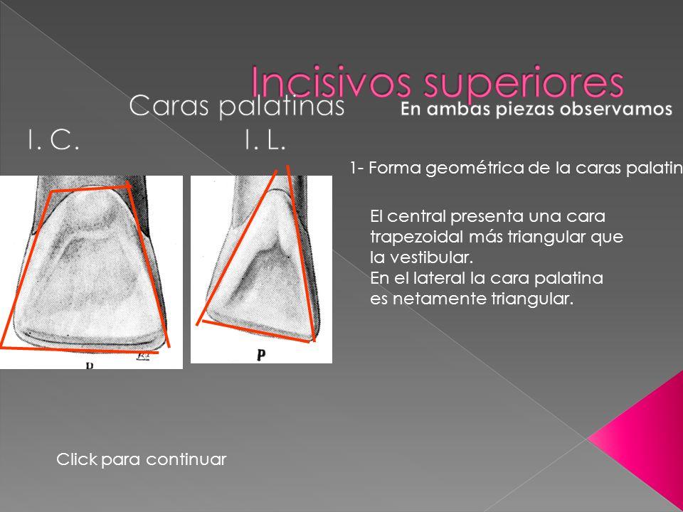 1- Forma geométrica de la caras palatinas. El central presenta una cara trapezoidal más triangular que la vestibular. En el lateral la cara palatina e