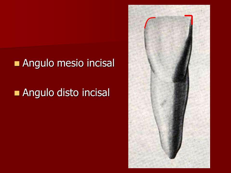 Angulo mesio incisal Angulo mesio incisal Angulo disto incisal Angulo disto incisal