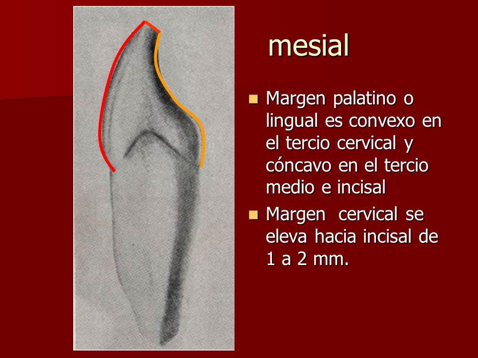 mesial Margen palatino o lingual es convexo en el tercio cervical y cóncavo en el tercio medio e incisal Margen palatino o lingual es convexo en el tercio cervical y cóncavo en el tercio medio e incisal Margen cervical se eleva hacia incisal de 1 a 2 mm.
