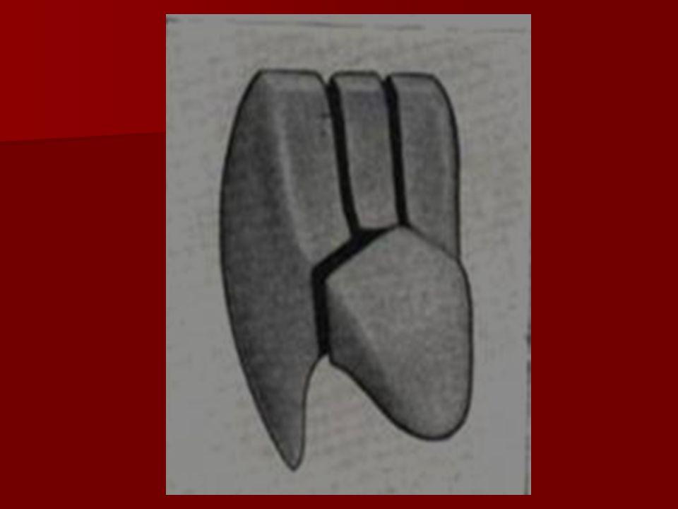 Raíz La porción apical de se inclina hacia distal y en ocasiones puede llegar a formar un ángulo recto La porción apical de se inclina hacia distal y en ocasiones puede llegar a formar un ángulo recto El ápice presenta su agujero apical El ápice presenta su agujero apical