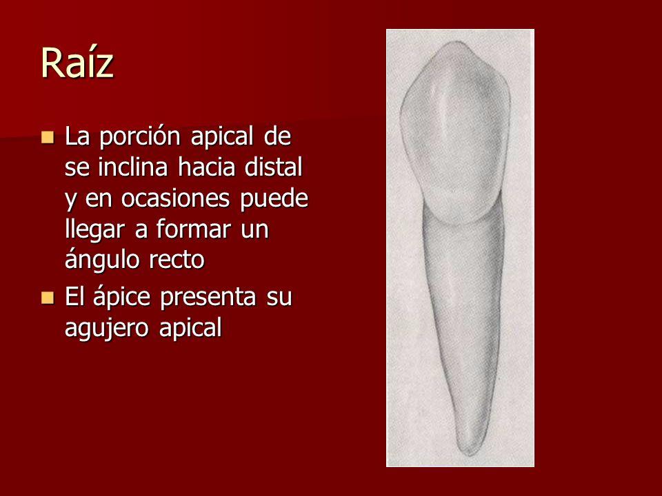 Raíz La porción apical de se inclina hacia distal y en ocasiones puede llegar a formar un ángulo recto La porción apical de se inclina hacia distal y