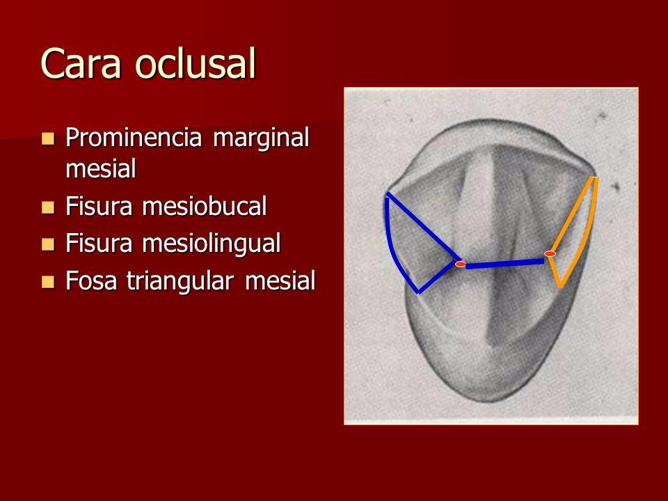 Cara oclusal Prominencia marginal mesial Prominencia marginal mesial Fisura mesiobucal Fisura mesiobucal Fisura mesiolingual Fisura mesiolingual Fosa triangular mesial Fosa triangular mesial