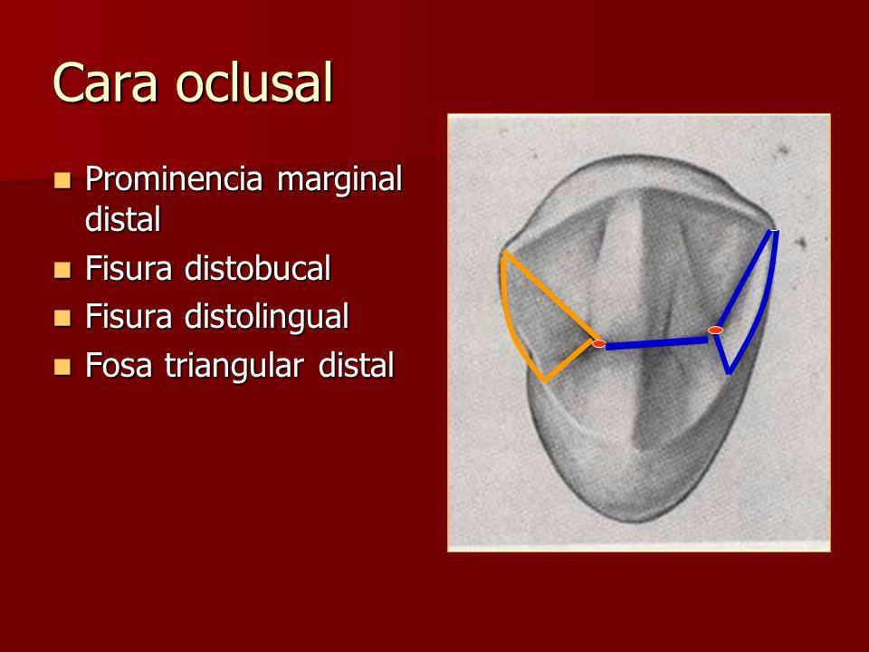 Cara oclusal Prominencia marginal distal Prominencia marginal distal Fisura distobucal Fisura distobucal Fisura distolingual Fisura distolingual Fosa triangular distal Fosa triangular distal