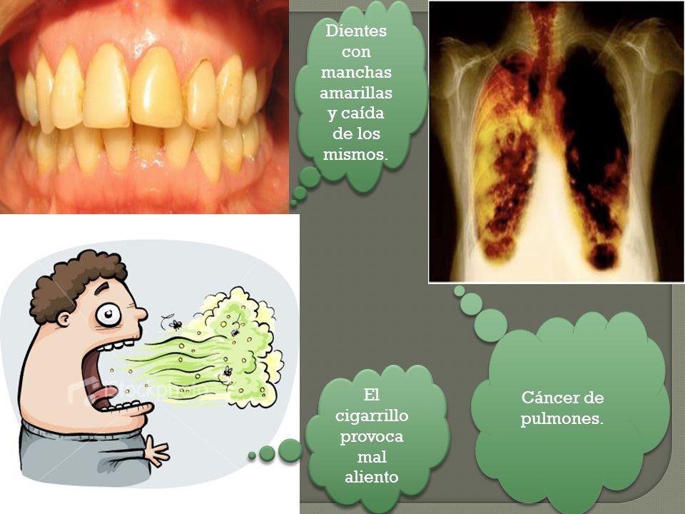 El cigarrillo provoca mal aliento Cáncer de pulmones. Dientes con manchas amarillas y caída de los mismos.
