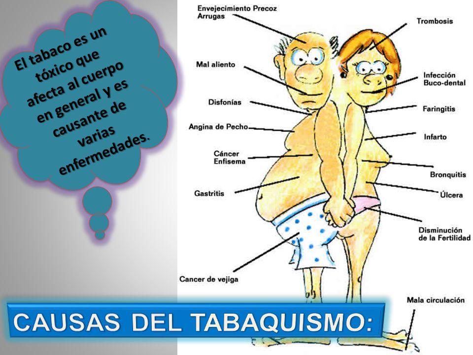 El tabaco es un tóxico que afecta al cuerpo en general y es causante de varias enfermedades.