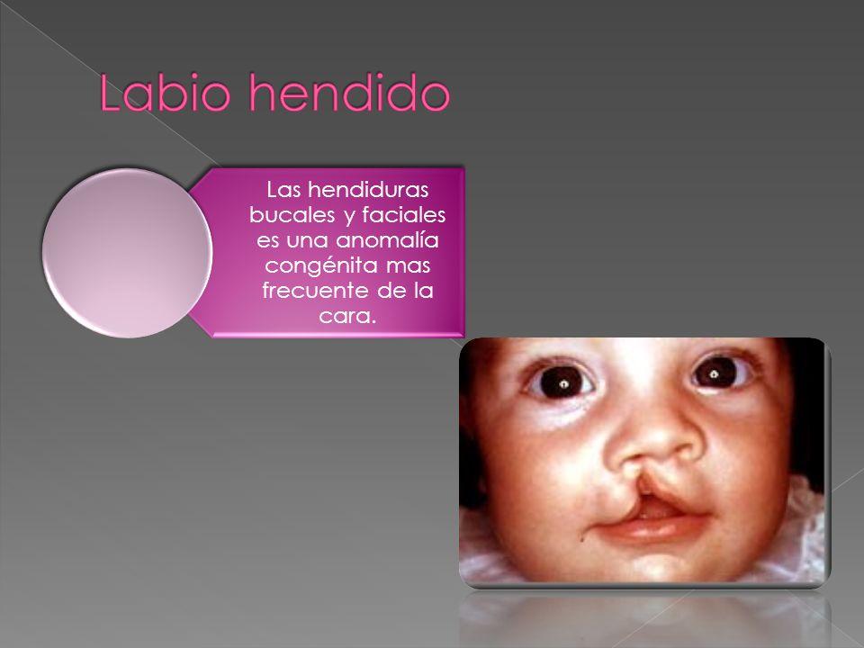 Las hendiduras bucales y faciales es una anomalía congénita mas frecuente de la cara.