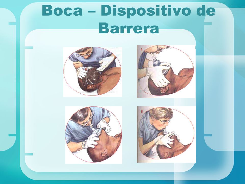 Boca – Dispositivo de Barrera