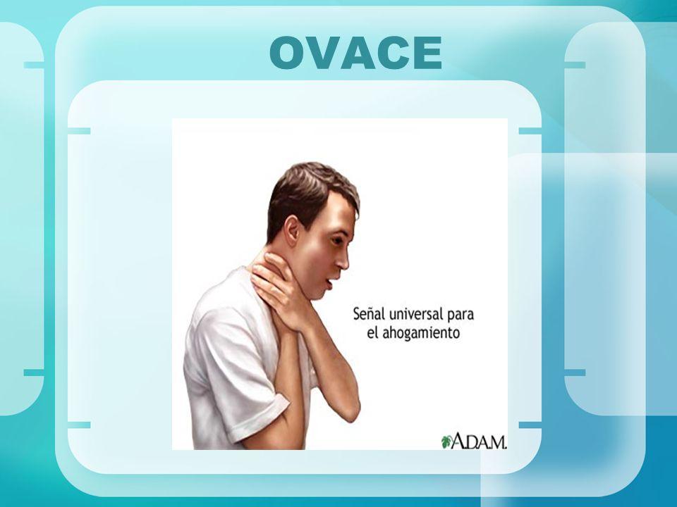 OVACE