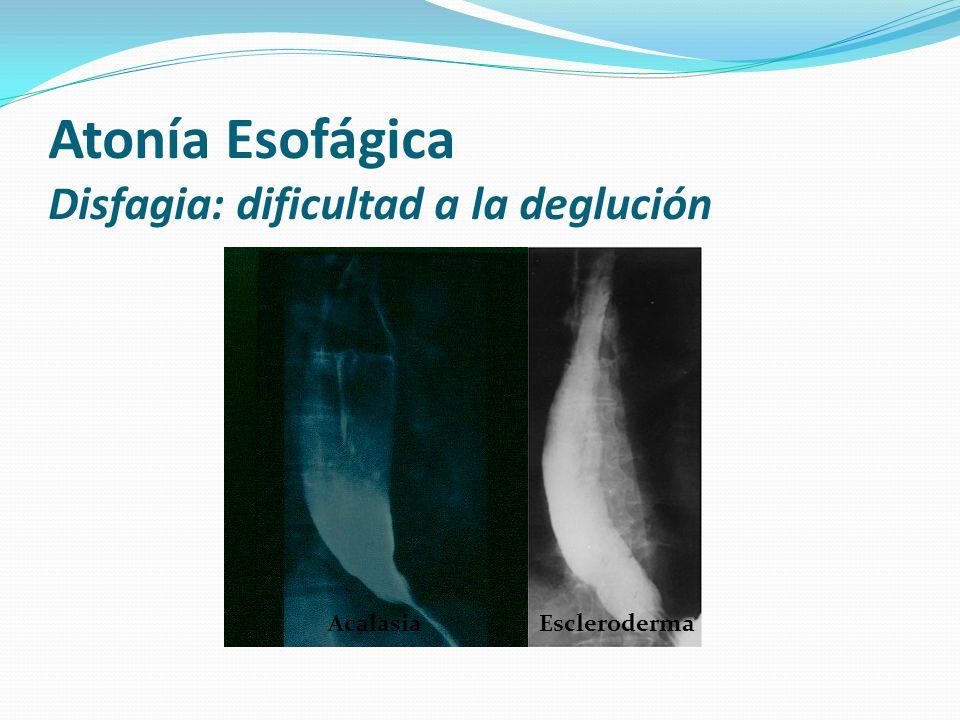 Acalasia Escleroderma Atonía Esofágica Disfagia: dificultad a la deglución