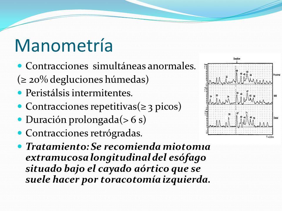 Manometría Contracciones simultáneas anormales. ( 20% degluciones húmedas) Peristálsis intermitentes. Contracciones repetitivas( 3 picos) Duración pro