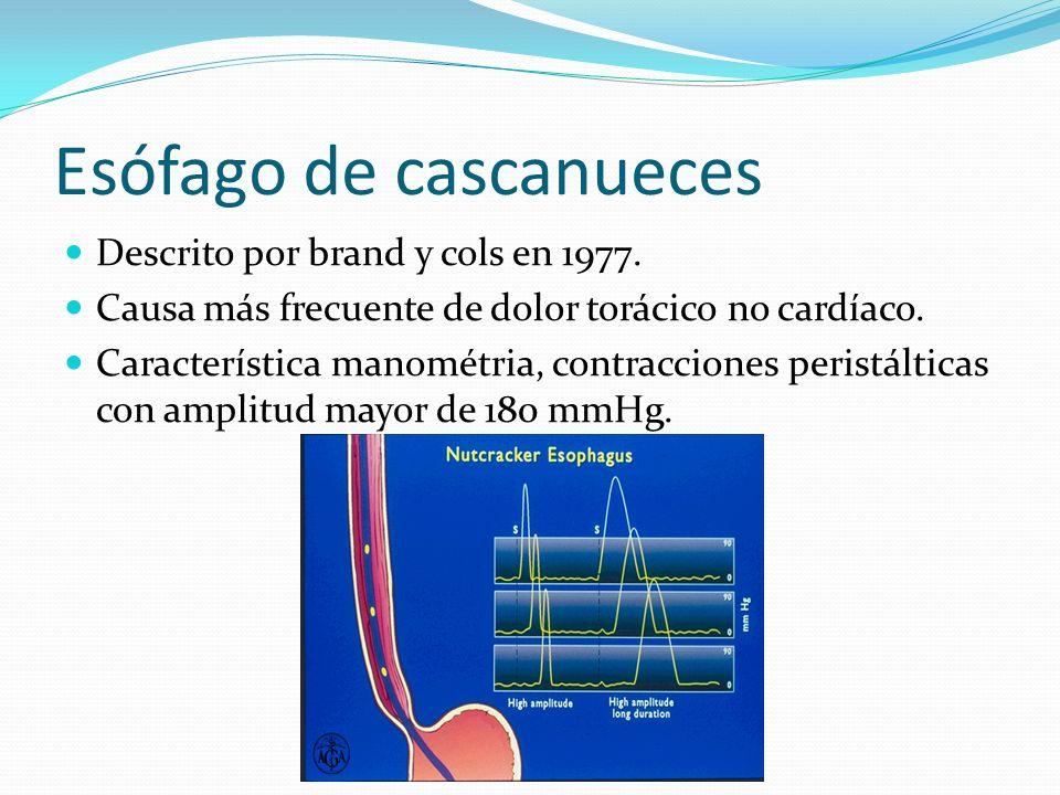 Esófago de cascanueces Descrito por brand y cols en 1977. Causa más frecuente de dolor torácico no cardíaco. Característica manométria, contracciones