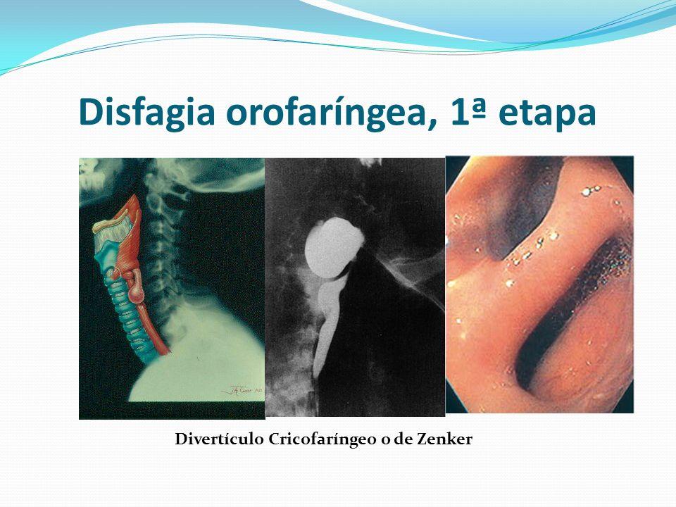 Disfagia orofaríngea, 1ª etapa Divertículo Cricofaríngeo o de Zenker