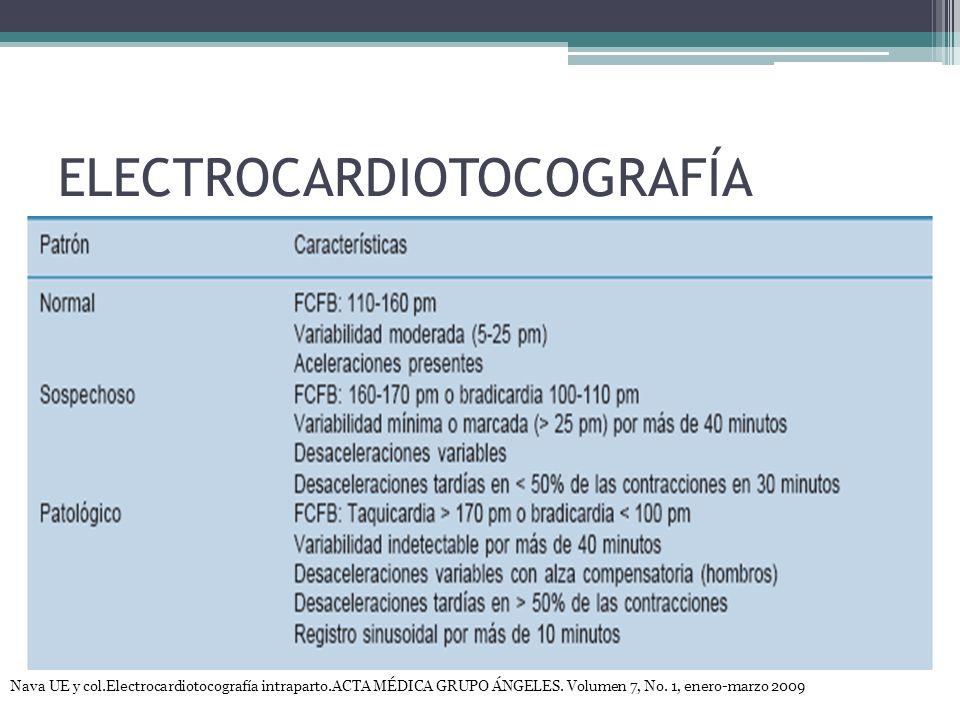 ELECTROCARDIOTOCOGRAFÍA Nava UE y col.Electrocardiotocografía intraparto.ACTA MÉDICA GRUPO ÁNGELES. Volumen 7, No. 1, enero-marzo 2009