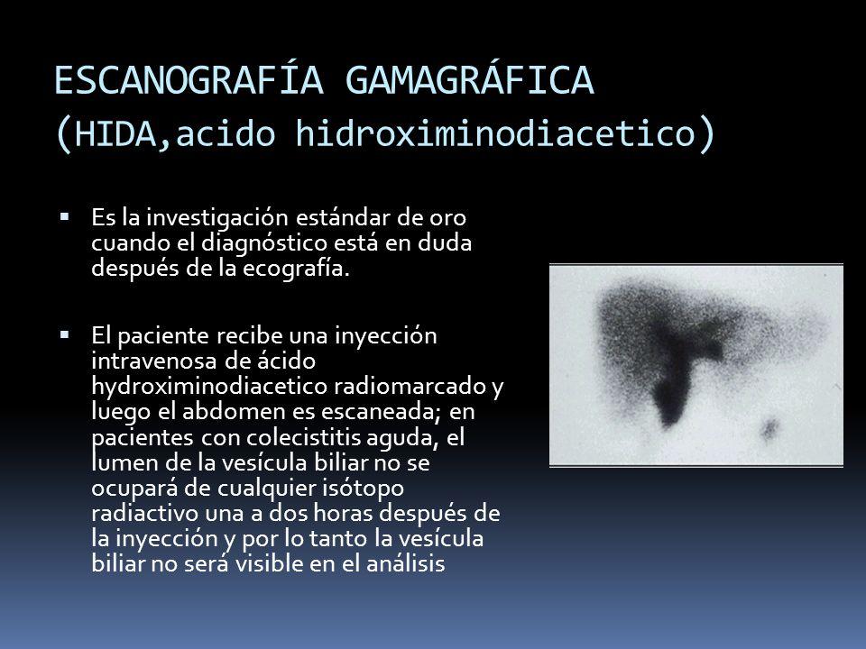 ESCANOGRAFÍA GAMAGRÁFICA ( HIDA,acido hidroximinodiacetico ) Es la investigación estándar de oro cuando el diagnóstico está en duda después de la ecografía.
