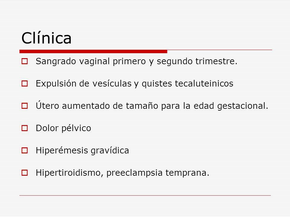Clínica Sangrado vaginal primero y segundo trimestre. Expulsión de vesículas y quistes tecaluteinicos Útero aumentado de tamaño para la edad gestacion